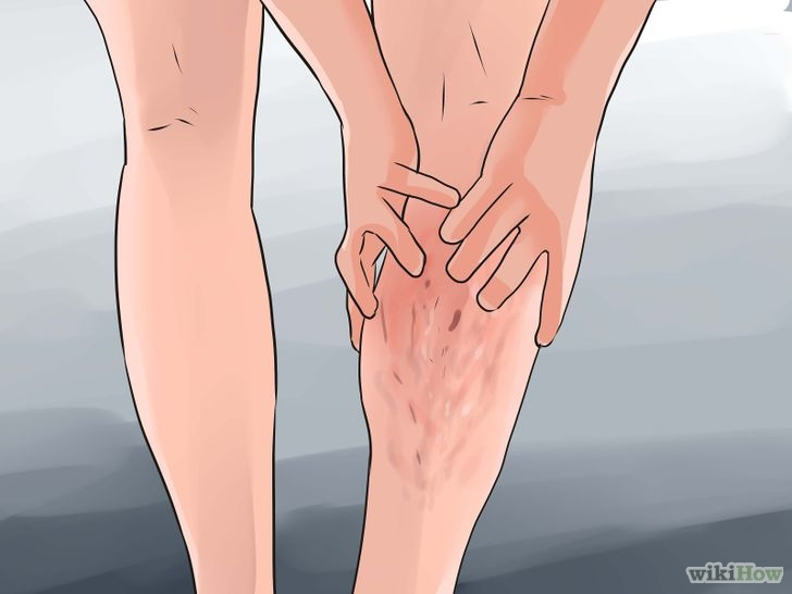 728px-Prevent-Varicose-Veins-Step-13